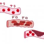 健康な血管からドロドロの血管に変わるイメージ